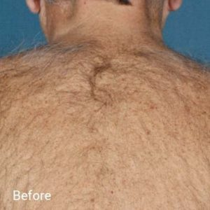 before Laser hair removal