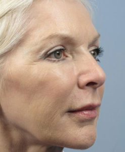 after Anti-Wrinkle Injections