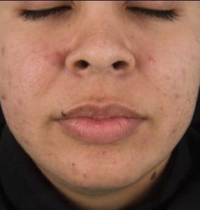 after DermaClear Acne Peel