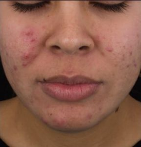 before DermaClear Acne Peel