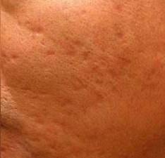 after Dermapen Micro Skin Needling