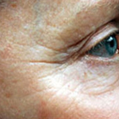 Dermaroller | London Premier Laser Clinic