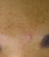 before Hydrafacial