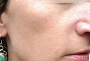 after IPL Skin Rejuvenation