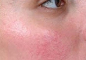 before IPL Skin Rejuvenation