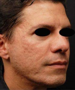 before Infini 3D Skin Tightening