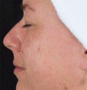 after SkinBrite Pigmentation Peel