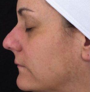 before SkinBrite Pigmentation Peel