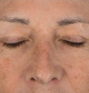 after StemCell Anti Ageing Peel