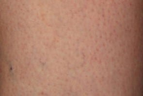 after Laser Thread Vein Removal