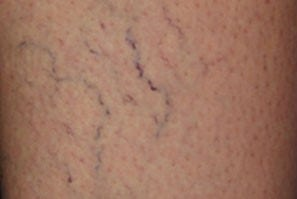 before Laser Thread Vein Removal