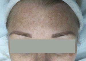 before Laser Pigmentation Removal