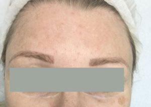 after Laser Pigmentation Removal