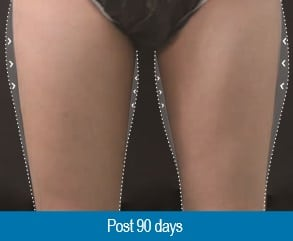 after Cryotherapy Fat Reduction