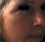 before Dermapen Micro Skin Needling