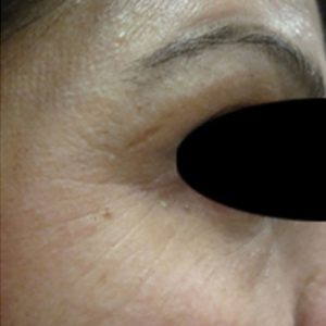 after Infini 3D Skin Tightening