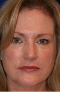 after The Vampire Facelift (PRP)