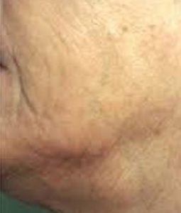 after Radio-Frequency Skin Resurfacing