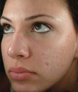 before Radio-Frequency Skin Resurfacing