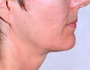 after Radio Frequency Skin Tightening