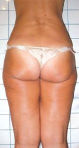 before Body Contouring