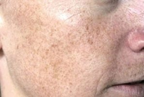 before Laser Pigmentation Removal