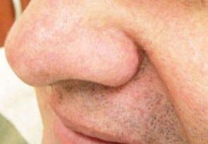 after Facial Thread Veins