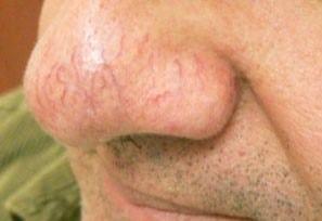 before Facial Thread Veins