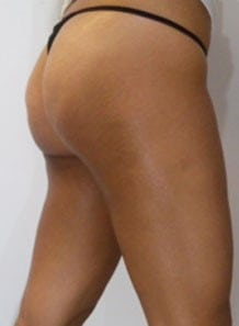 after Cellulite Treatment