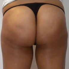 after Cellulite