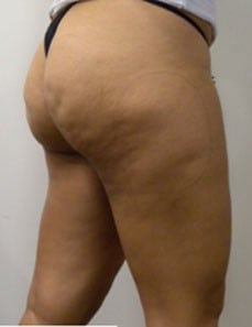 before Cellulite