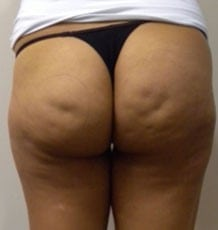 before Cellulite Treatment