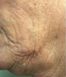 before Saggy Facial Skin