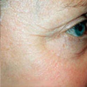 after Saggy Facial Skin
