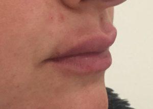 after Lip Enhancement