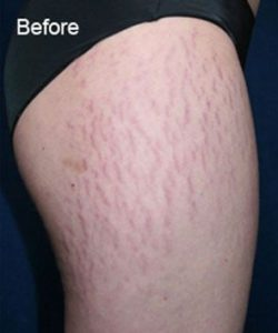before Stretch Marks and Treatment
