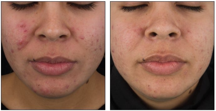 DermaClear Acne Peel Before & After