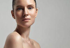 Freckles vs. Pigmentation