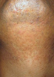 after Laser Hair Removal for PCOS