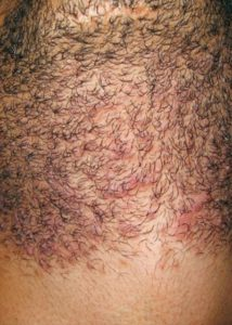 before Laser Hair Removal for PCOS