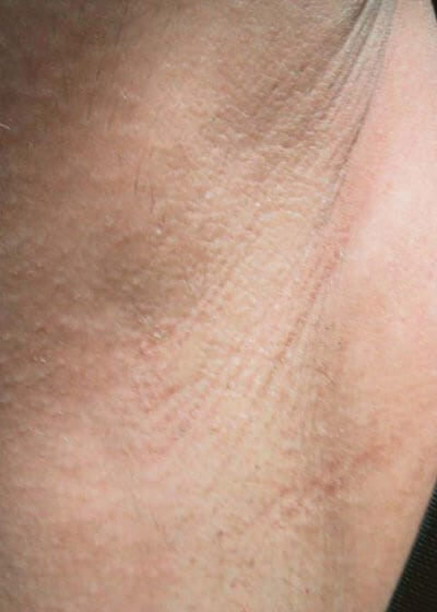 Laser hair removal armpit after