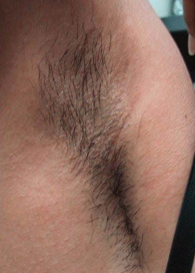 Laser Hair Removal armpit before