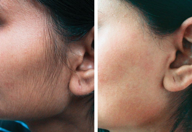 Laser hair removal woman face before after