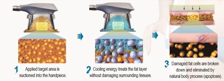 Cryo Process