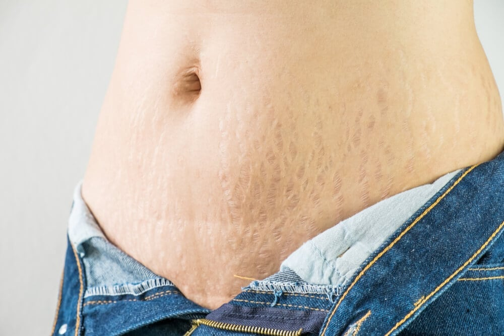 Microneedling - the solution to stretchmarks