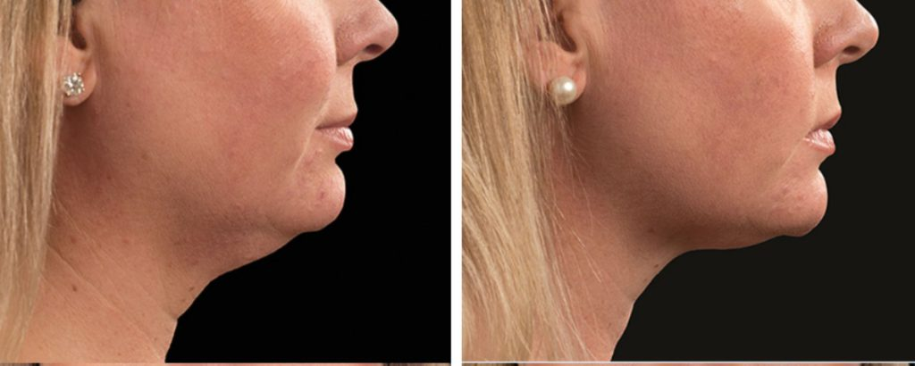 coolsculpting double chin before and after photo