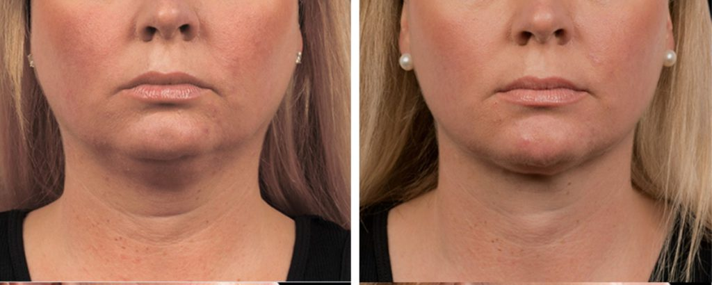 coolsculpting double chin area before and after photo
